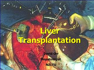 Liver Transplantation  for  Alcoholic Liver Disease