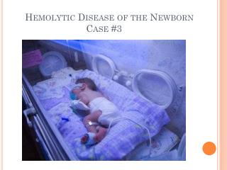 Hemolytic Disease of the Newborn     Case #3
