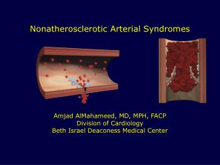 Nonatherosclerotic Arterial Syndromes Amjad AlMahameed, MD, MPH, FACP Division of Cardiology Beth Israel Deaconess Medic