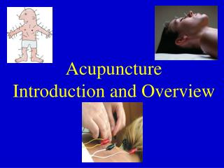 Acupuncture  Introduction and Overview