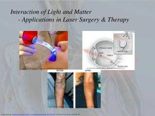 Interaction of Light and Matter 	- Applications in Laser Surgery & Therapy