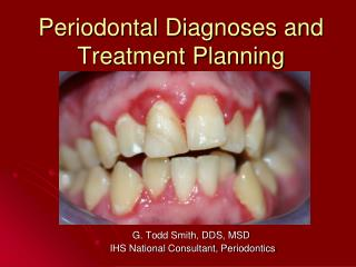 Periodontal Diagnoses and Treatment Planning