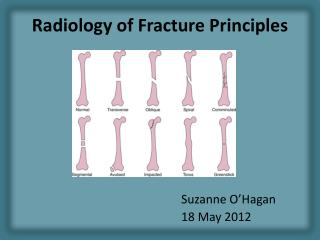Radiology of Fracture Principles