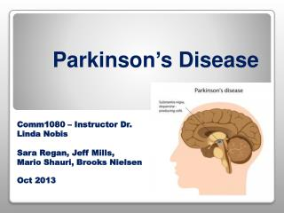 Parkinson's D isease