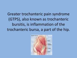 Greater trochanteric pain syndrome (GTPS), also known as trochanteric bursitis, is inflammation of the trochanteric burs