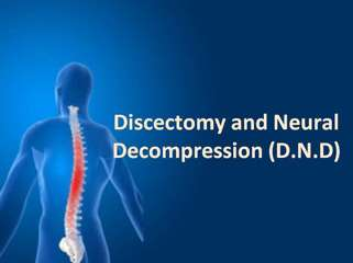 discectomy and neural decompression (d.n.d)