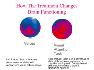 How The Treatment Changes  Brain Functioning