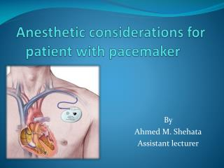 Anesthetic considerations for patient with pacemaker