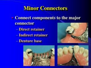 Minor Connectors