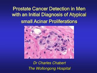 Prostate Cancer Detection in Men with an Initial Diagnosis of Atypical small Acinar Proliferations