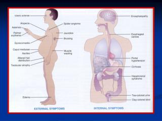 Pathophysiology of Ascites