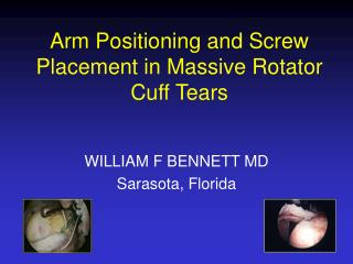 Arm Positioning and Screw Placement in Massive Rotator Cuff Tears