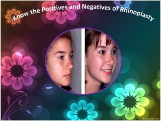 Know the Positives and Negatives of Rhinoplasty