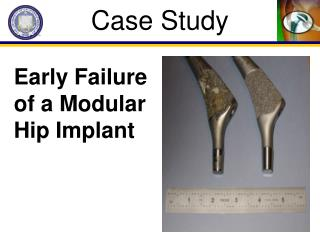 Early Failure of a Modular Hip Implant