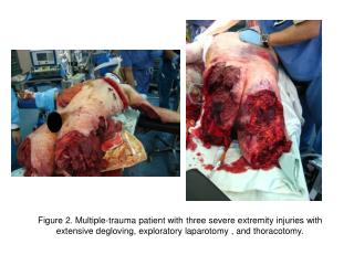 Figure 2. Multiple-trauma patient with three severe extremity injuries with extensive degloving, exploratory laparotomy