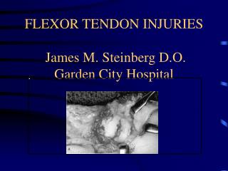 FLEXOR TENDON INJURIES  James M. Steinberg D.O. Garden City Hospital