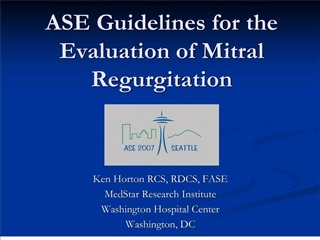 ASE Guidelines for the Evaluation of Mitral Regurgitation