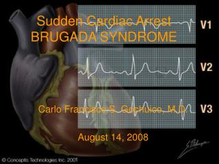 Sudden Cardiac Arrest  BRUGADA SYNDROME
