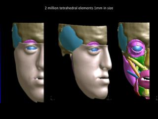 LS-DYNA simulation – facial expressions Smile – Pre-surgery