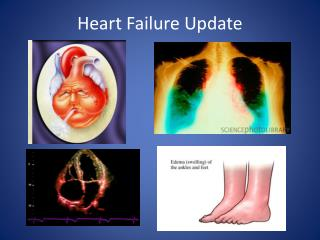 Heart Failure Update