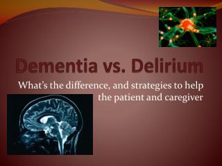 Dementia vs. Delirium