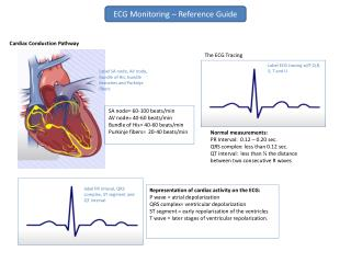 Normal measurements: PR Interval:  0.12 – 0.20 sec. QRS complex: less than 0.12 sec.