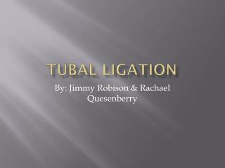 Tubal Ligation