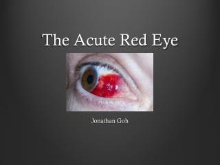 The Acute Red Eye