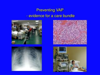 Preventing VAP  - evidence for a care bundle