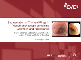 Segmentation of Tracheal Rings in  Videobronchoscopy  combining Geometry and Appearance