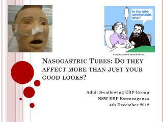 Nasogastric Tubes: Do they affect more than just your good looks?