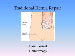 Traditional Hernia Repair