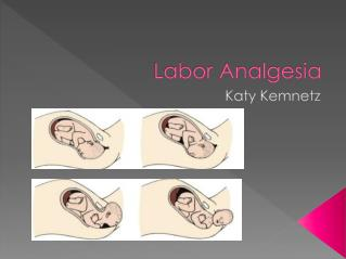 Labor Analgesia