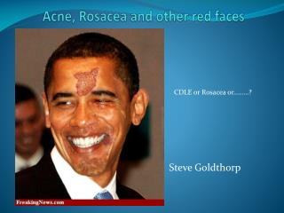 Acne,  Rosacea  and other red faces