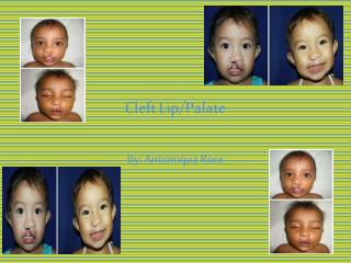 Cleft Lip/Palate