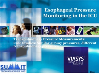 Esophageal Pressure Monitoring in the ICU