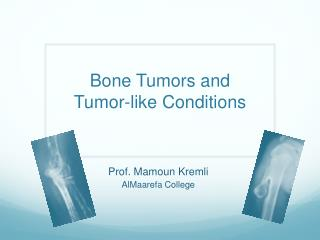 Bone Tumors and Tumor-like Conditions