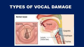 TYPES OF VOCAL DAMAGE