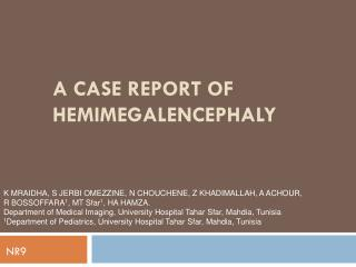 A CASE REPORT OF HEMIMEGALENCEPHALY