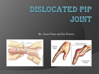 Dislocated Pip Joint