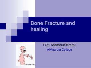Bone Fracture and healing