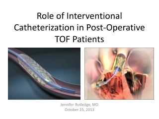 Role of Interventional Catheterization in Post-Operative TOF Patients