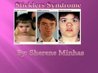 Sticklers Syndrome