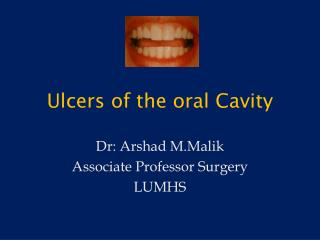Ulcers of the oral Cavity