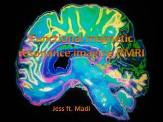 F unctional magnetic resonance imaging (fMRI