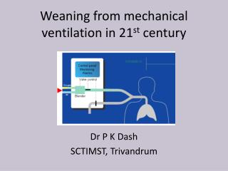 Weaning from mechanical ventilation in 21 st  century