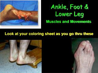 Ankle, Foot & Lower Leg