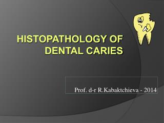 Histopathology of Dental Caries