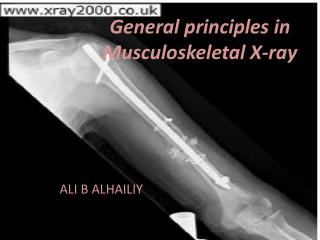 General  principles  in Musculoskeletal X-ray