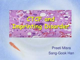CTCF and  Imprinting Disorder